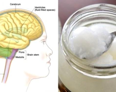 Kokosöl ist Supernahrung für dein Gehirn